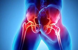 pathologies du bassin et de la hanche